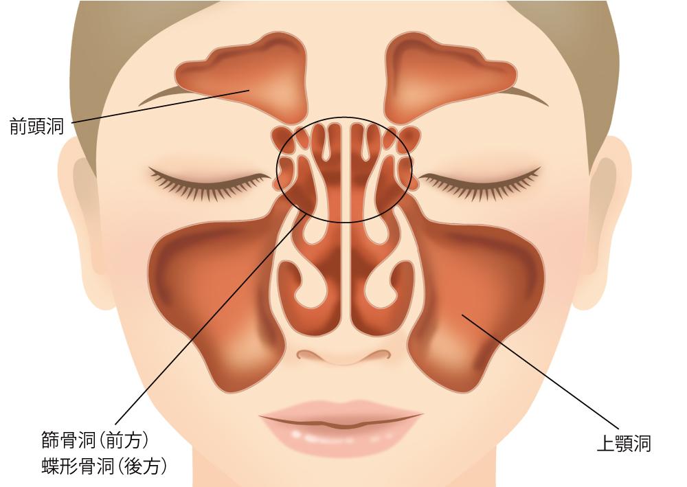 副鼻腔炎(ちくのう症)