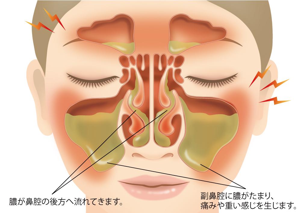 急性副鼻腔炎 | 医療法人 神谷耳鼻咽喉科医院