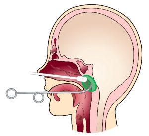 Bスポット療法 神谷耳鼻咽喉科クリニック